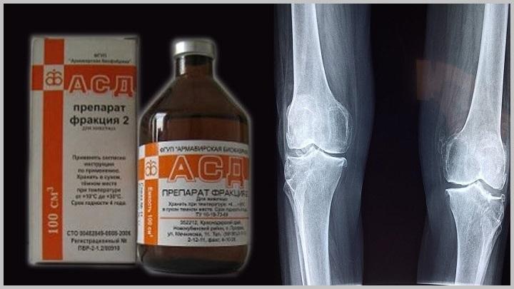 Лечение асд-2 при инфекции суставов санатория по лечению суставов железноводск
