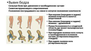 Ретроторсия тазобедренных суставов реабиллитация после эндопротезирования тазобедренного сустава