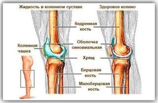 Почему при движении вырабатывается жидкость в коленном суставе восточные лечения инь суставы киев