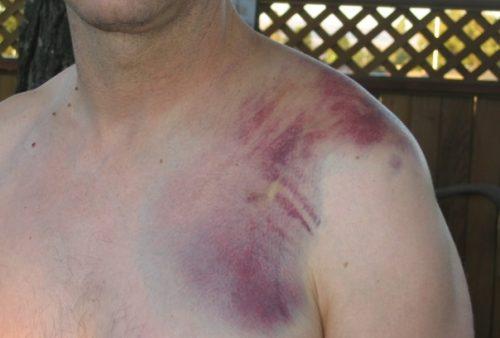 Ушибленная рана плечевого сустава артроз коленного сустава как выглядит
