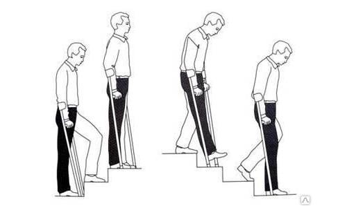 Позы после замены тазобедренного сустава снятие боли при артрозе коленного сустава народными средствами