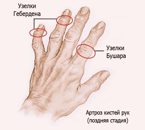 Артроз сустава пальцев вспомогательный аппарат коленного сустава